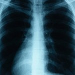 Researchers Define Key Components in Lung Repair
