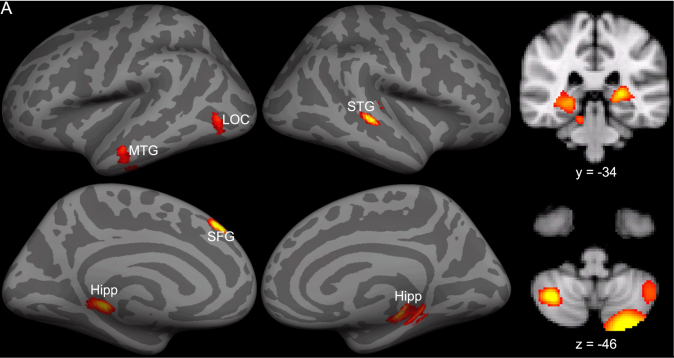Scans Show Possible Link Between Brain >> Centers Throughout The Brain Work Together To Make Reading Possible