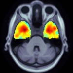 A magnetic resonance imaging scan shows brain tissue loss in a carrier of the TREM2 Alzheimer's risk gene variant at 24 months. (Photo/courtesy of Paul Thompson)