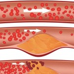 Three views of cholesterol plaque in arteries: The top artery is healthy; the middle and bottom show plaque formation, rupturing, clotting and blood flow occlusion.