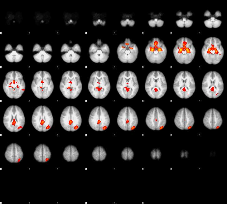 A screenshot from a functional magnetic resonance imaging study  shows the brains of adolescents reacting to video clips of their peers. (Photo/courtesy of Darby Saxbe)