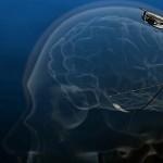 epilepsy device