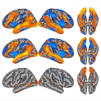 Magnetic resonance imaging data showed that very similar patterns of brain activity are engaged by reading across languages (top and middle images). (Courtesy of Jason Zevin)