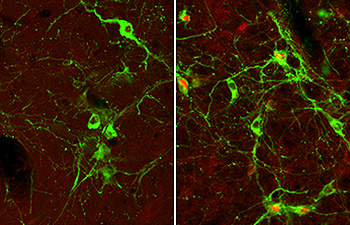 Microscopy images of neurons in the hindbrain (Courtesy of Alan Watts)