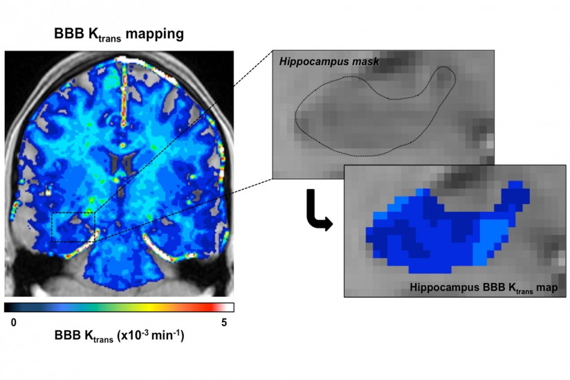 USC researchers used enhanced brain images to measure the blood-brain barrier, Neuroscientists, Trans Mapping