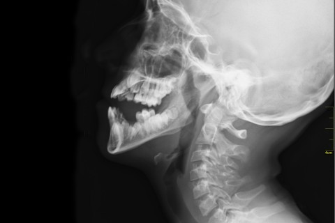 head and neck x ray