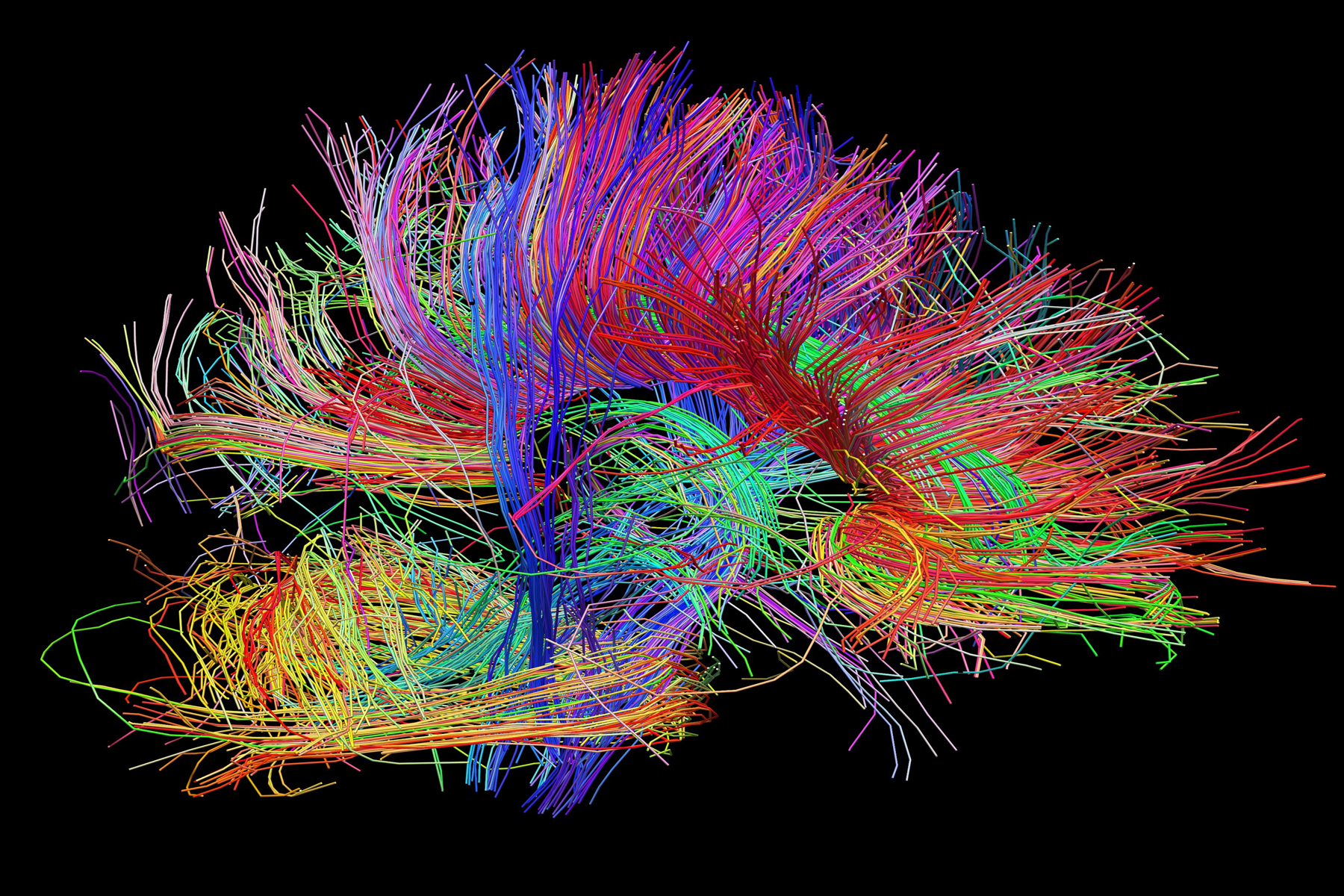 brain mapping In a nutshell, experts say the brain fingerprinting test -- as the brain-mapping test is also called -- matches information stored in the brain with.