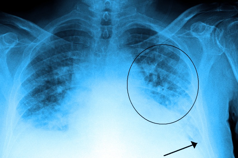 lung disease, x ray,