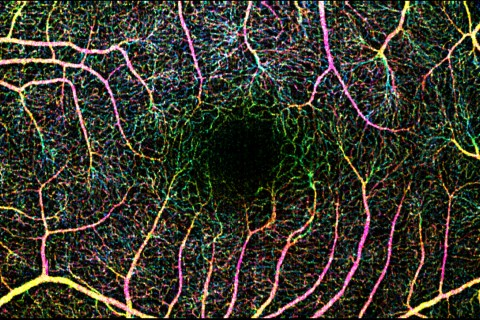 Image of a retina produced by the OCT-angiography process, which screens for diabetic retinopathy (Photo/Translational Imaging Center)