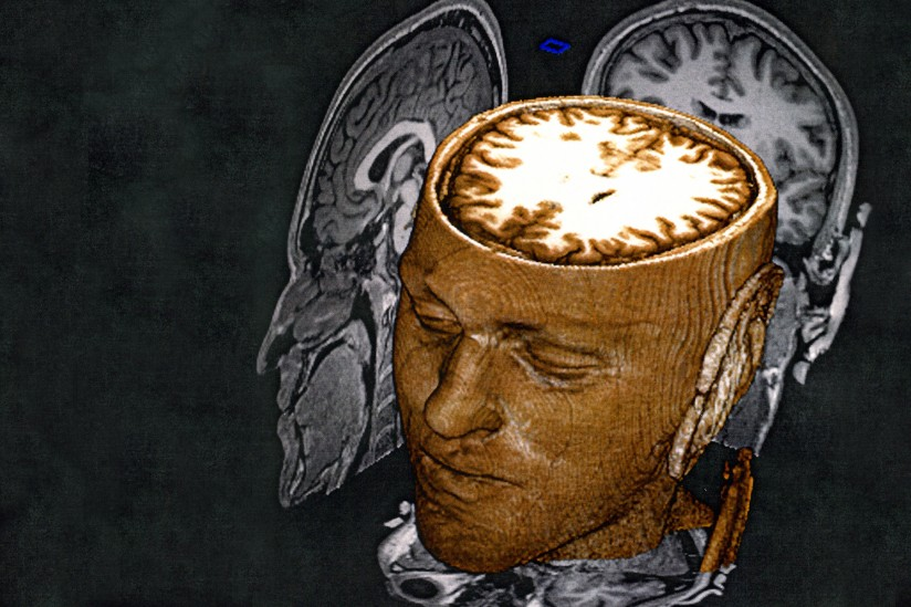 MRI/brain