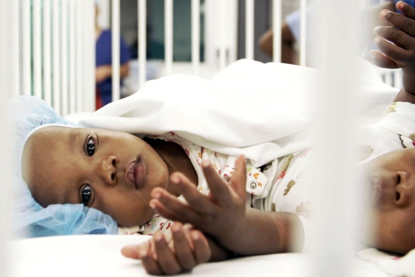 The twins were separated by an 18-member team during a seven-hour surgery. (Photo/Children's Hospital Los Angeles)