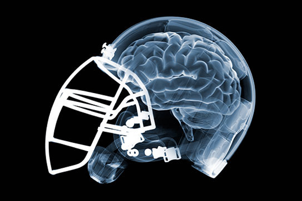 football helmet scan