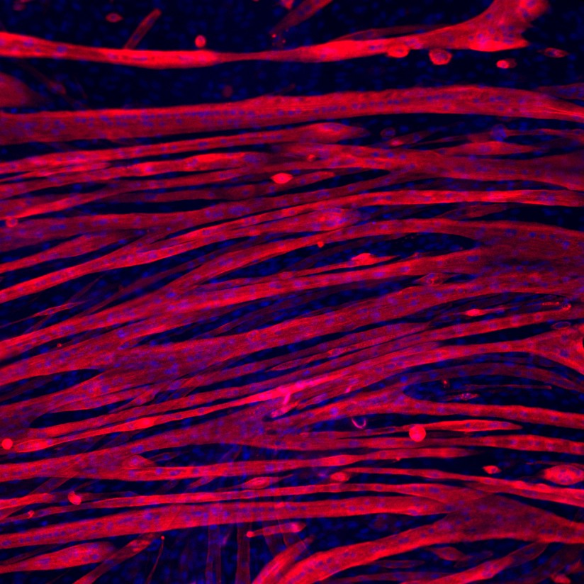 microscopic view of muscle fiber