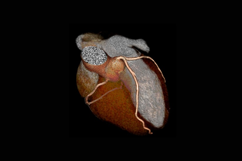 CT scan of heart