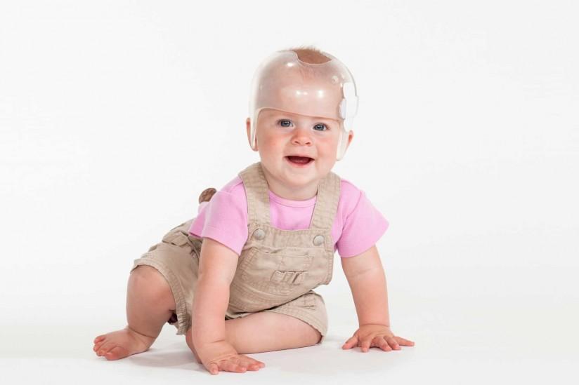 Baby wearing cranial helmet