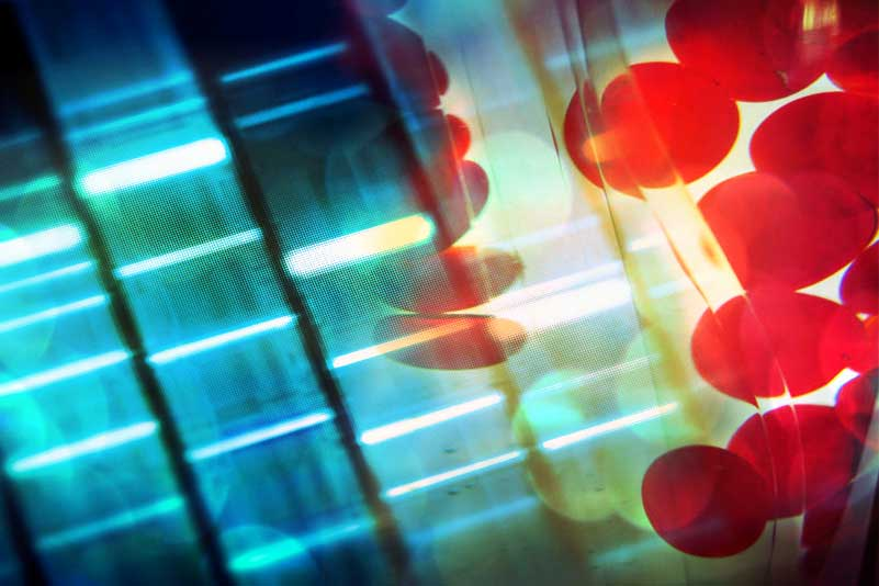 Biomarkers and therapeutic targets