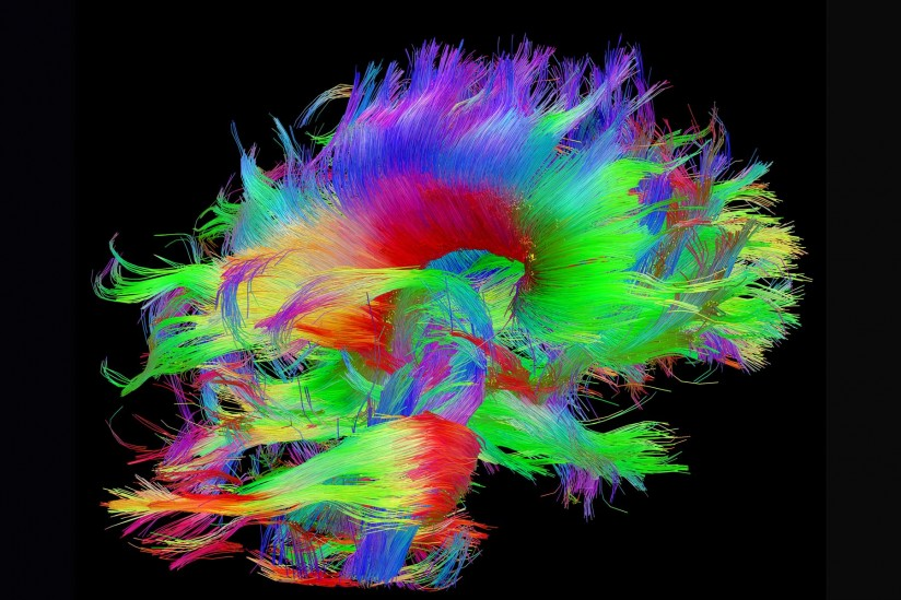 brain trachtography imaging