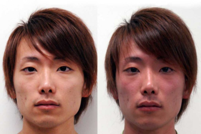 Asian man exhibiting effects of acetaldehyde build-up
