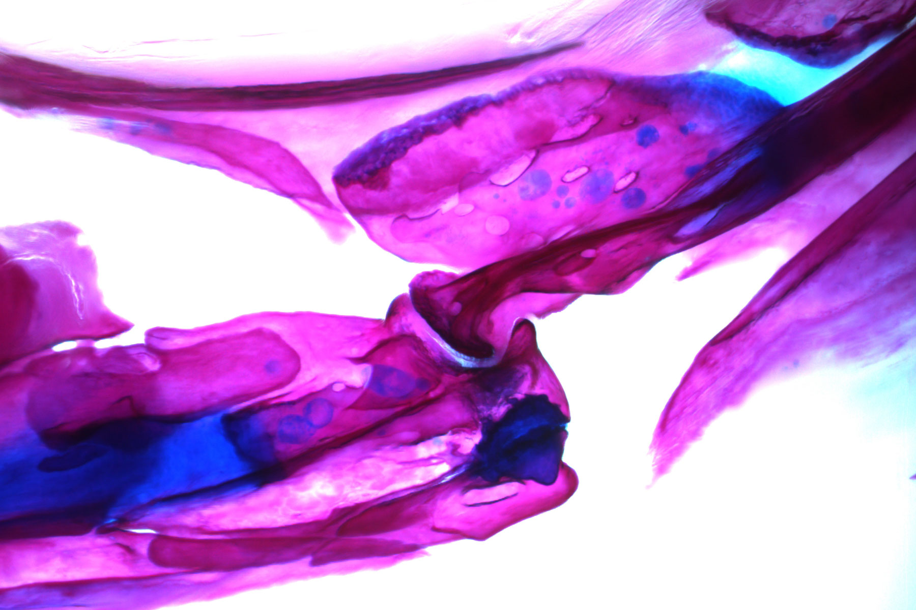 Researchers found that removing the Lubricin gene from the zebrafish genome results in arthritis in their jaws and fins. (Photo/Amjad Askary)