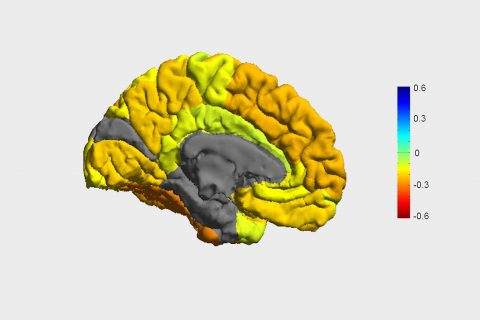 Image of brain showing differences in Bipolar patients