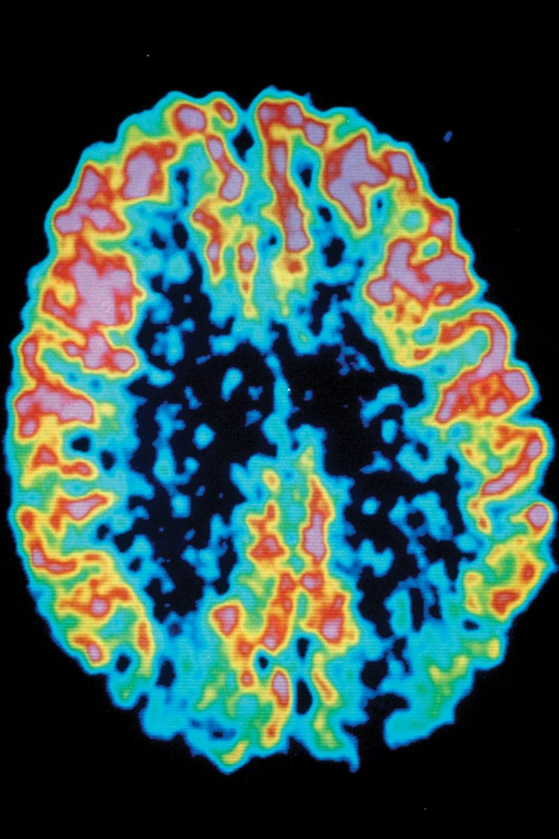 PET scans can show areas of the brain with decreased activity