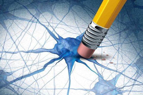 Alzheimer's illustration