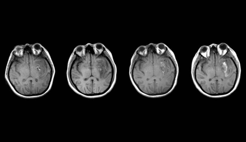 brain scans in black and white
