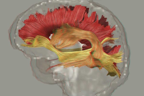 colorful trachtography imaging of brain with schizophrenia