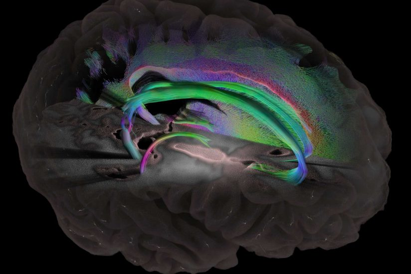 imaging of brain with different parts highlighted