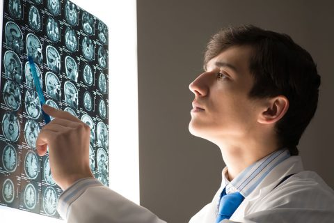doctor reviewing brain scans