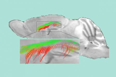 Diffusion MRI in mouse brain gatekeeper cells