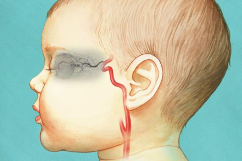 children's eye cancer treatment