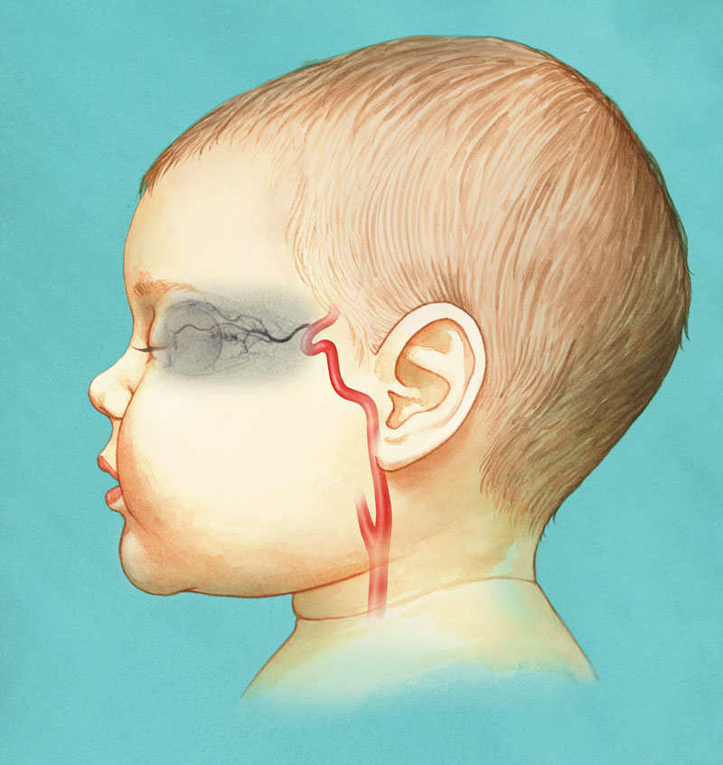 children's eye cancer treatment