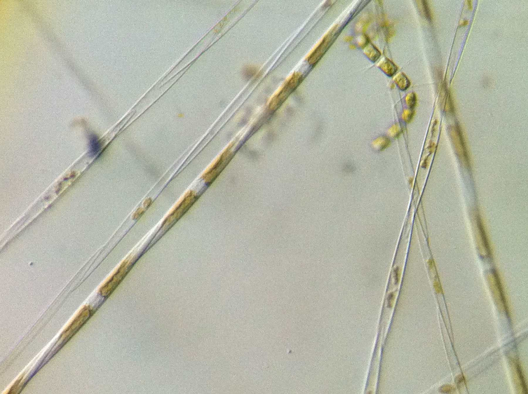 Pseudonitzschia toxic algae bloom