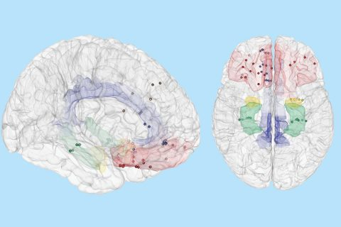 New treatments for depression: illustrations of brain regions affected by mood