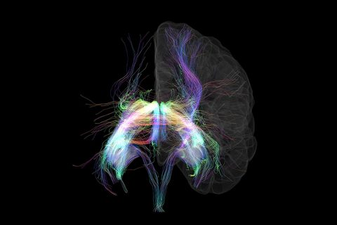 brain neuroimaging