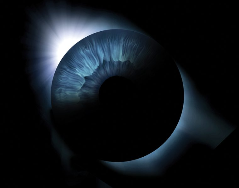 macular degeneration iris