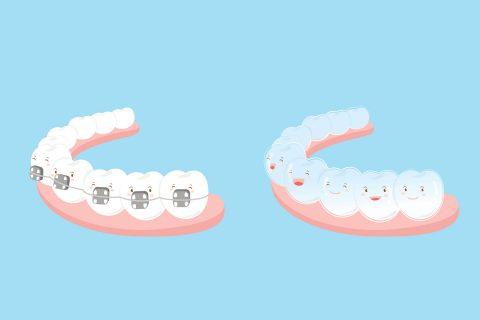 DIY orthodontics