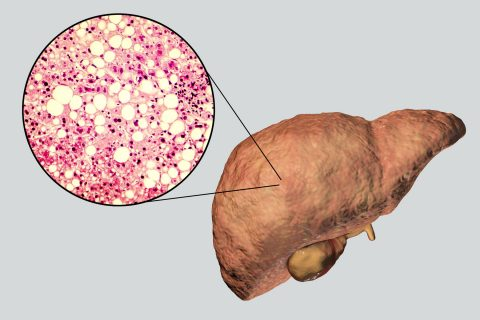 Non-alcoholic fatty liver disease: Illustration shows fat accumulated inside liver cells