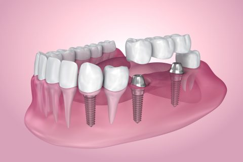 Antimicrobial dental film: illustration