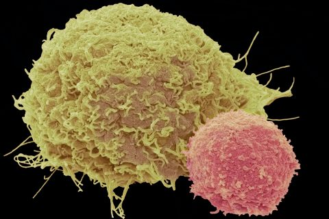 Improved Car T Cell Therapy Produces No Serious Side Effects
