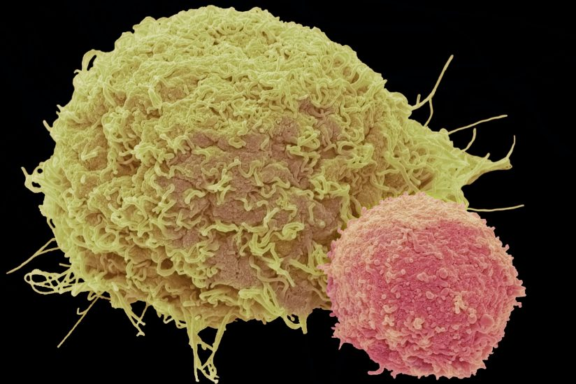 Improved CAR T-cell therapy produces no serious side effects