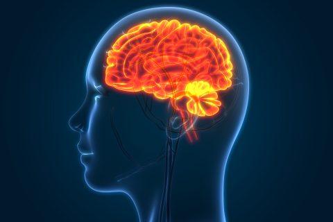 brain swelling stroke recovery