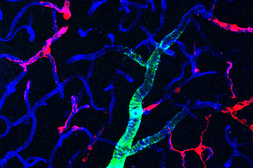 Pericytes preserve neurons prevent Alzheimers