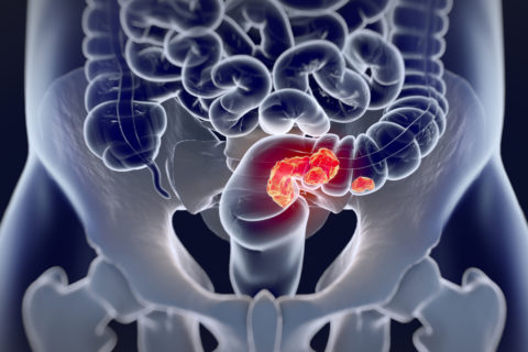 colorectal cancer treatment