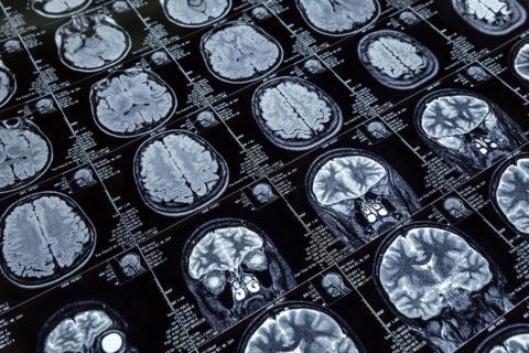 brain surgery hospital