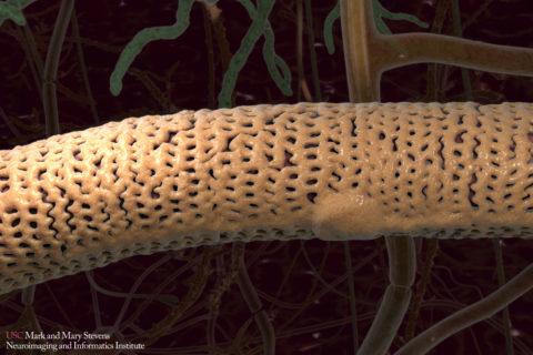 pericytes Alzheimer's APOE4 gene