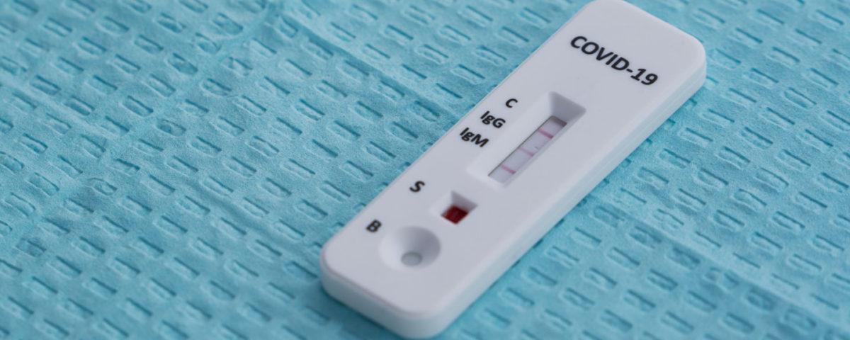 Covid antibody testing results