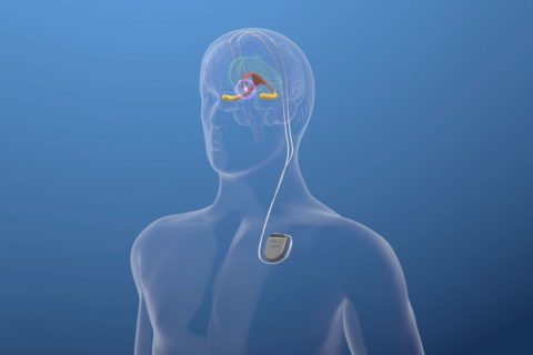 alzheimers clinical trial deep brain stimulation