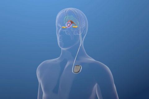 alzheimers clinical trial deep brain stimulation